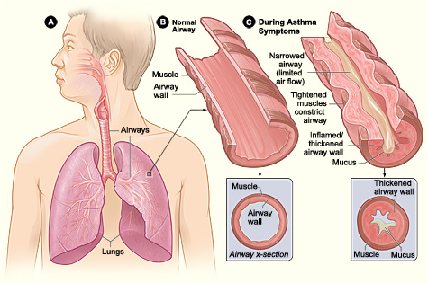 asthma and shortness of breath