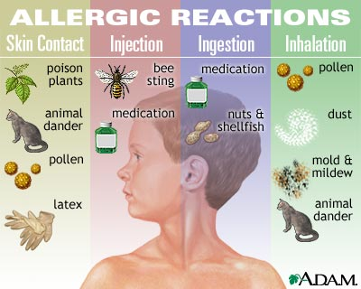 allergic reaction