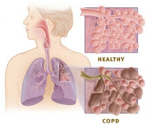 Copd_versus_healthy_lung-300x253