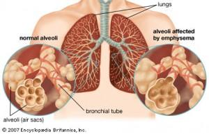 damage in emphysema