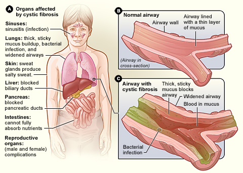cystic fibrosis affected organs