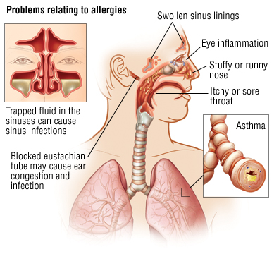 Allergy - Hay Fever - Allergic Rhinitis