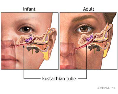 Eustachian tube ear infection