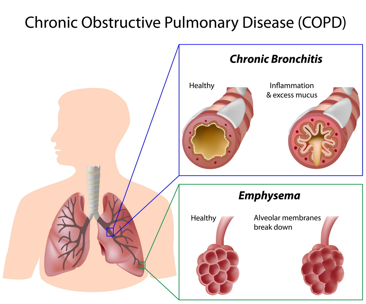 Hay does anyone know what Chronic pulmonary disease is?