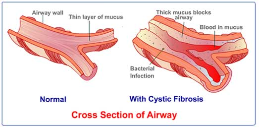 cystic fibrosis signs and symptoms