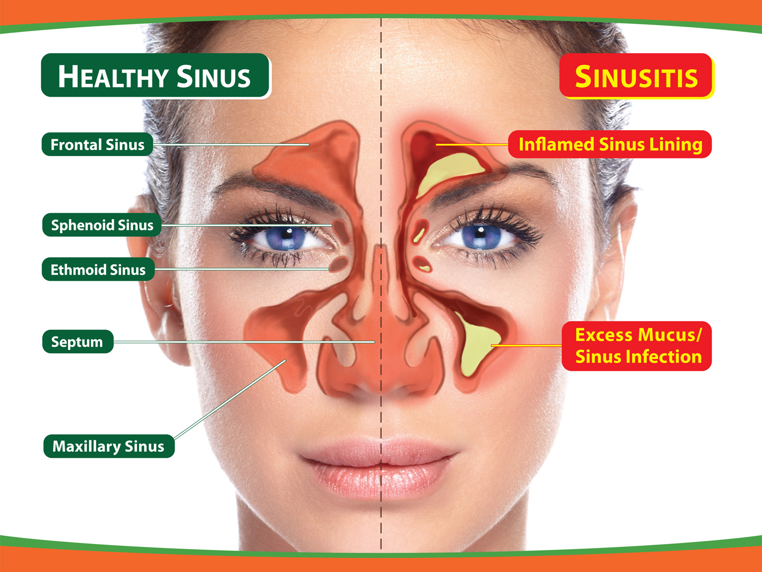 Frontal Sinusitis Natural Treatment