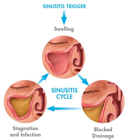 Salt therapt to ease Sinusitis