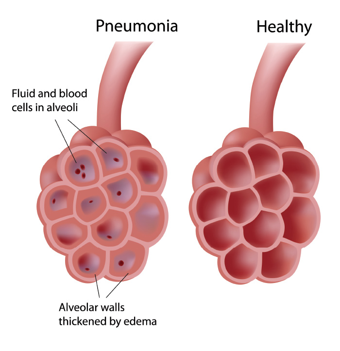 pneumonia infection