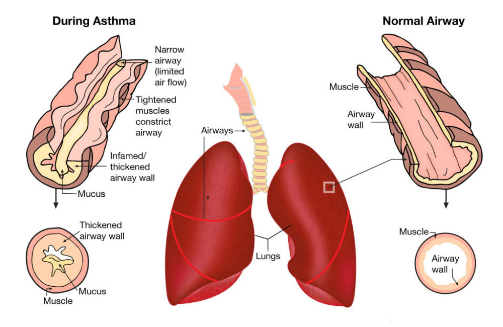 salt therapy benefits asthma