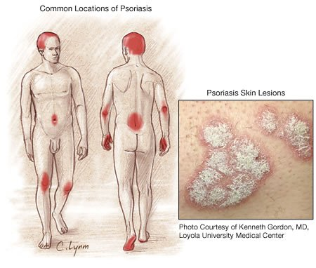 Psoriasis common locations