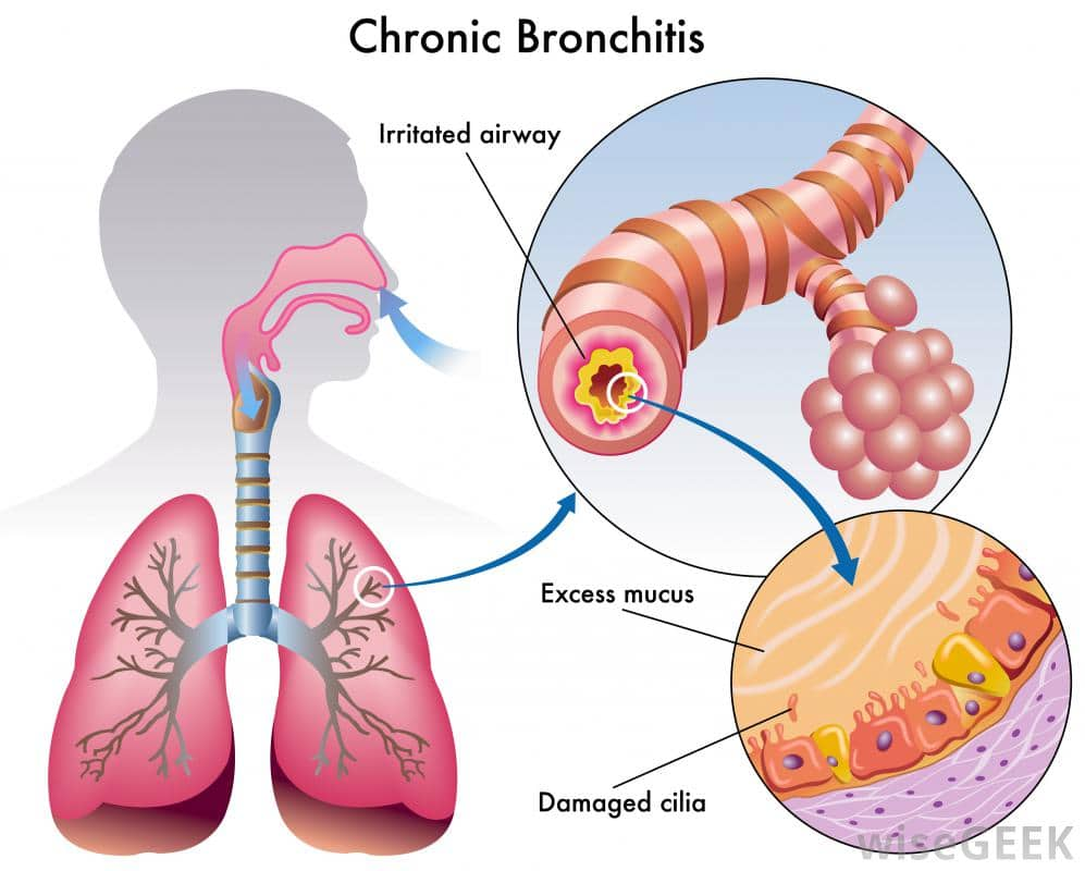 chronic-bronchitis-mucus