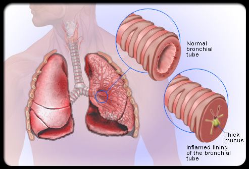 Salt Therapy improving Bronchitis symptoms  - diagram showing inflammation and mucus