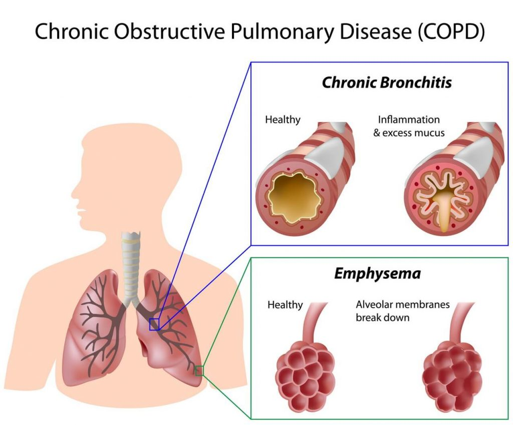 COPD-Management