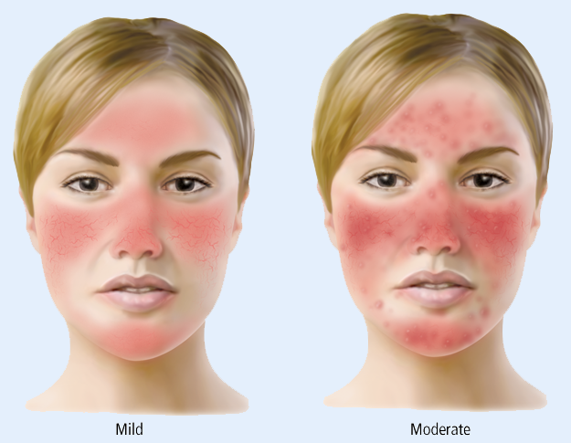 Salt Therapy and Rosacea